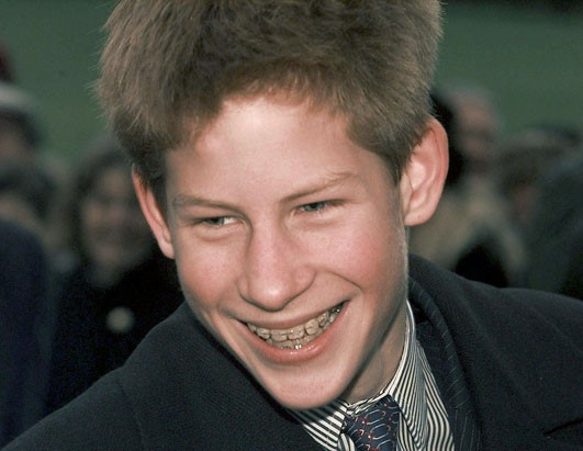 Prince Harry in braces